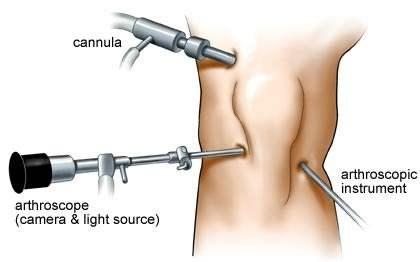 看关节镜如何拯救你的膝关节