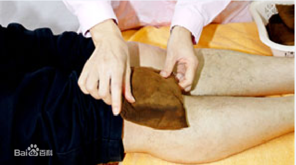 前交叉韧带术后重建粘连