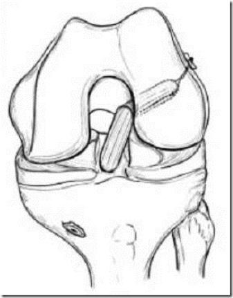 前交叉韧带解剖图3