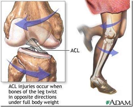 前交叉韧带解剖图5