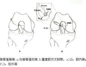 前交叉韧带重建双束与单束的区别