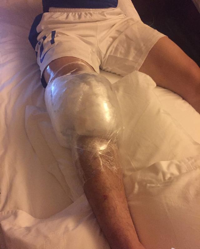 永昌悍将确认十字韧带断裂 赛季报销将手术