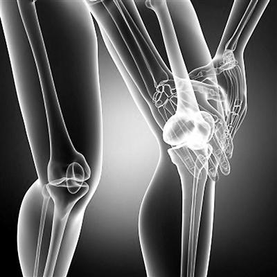 桥接法治疗前交叉韧带损伤