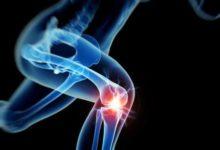 膝关节:我是如此容易受伤-前叉之家