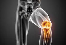膝关节微创手术费用是多少钱?-前叉之家