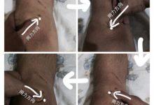 小知识 :关节镜手术产生的疤痕(瘢痕)-前叉之家
