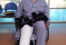 迟来十二年的手术「继续者张付」的膝伤术后百日纪-前叉之家