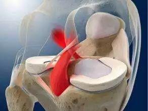 研究:澳青少年高速运动致膝关节重建手术率骤增