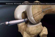 前交叉韧带修复:针对老技术的一场新革命-前叉之家