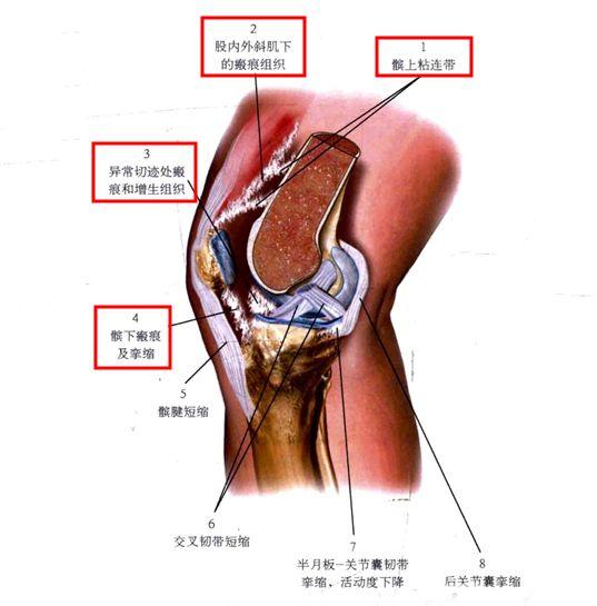 膝关节术后粘连产生的原因
