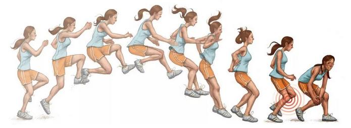 不正确的跳跃姿势会引起膝关节的损伤
