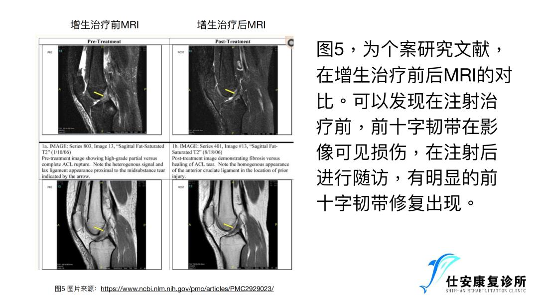 增⽣疗法在前交叉韧带损伤康复中的运⽤ - 为什么可以用增生疗法来治疗前交叉韧带损伤的问题?