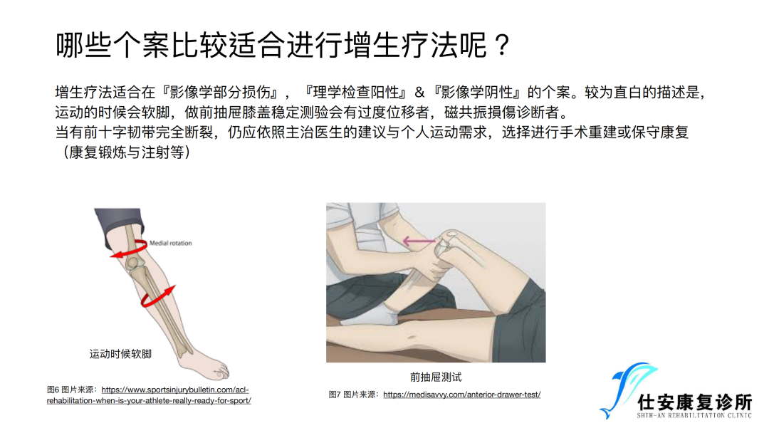 增⽣疗法在前交叉韧带损伤康复中的运⽤ - 哪些人适合使用增生疗法治疗前交叉韧带损伤?