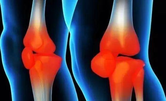 通常出现在有关节炎的膝盖
