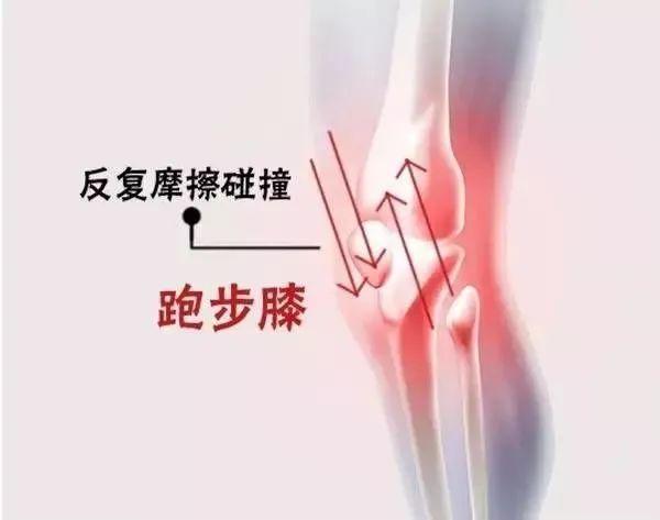 膝关节有细沙或刺耳的声音