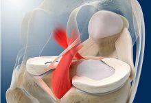 膝关节前交叉韧带重建几年会松弛掉?-前叉之家