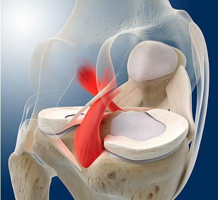 膝关节重建韧带松弛