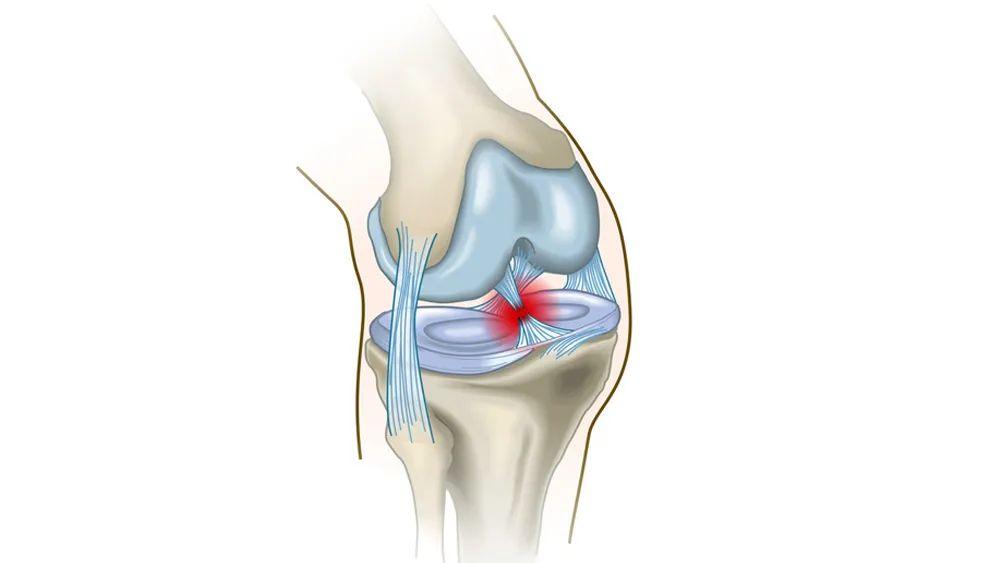 膝关节损伤图片