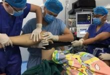 膝关节术后、前交叉韧带重建术后关于麻推的爱恨情仇-前叉之家
