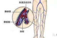 前叉术后各种疼痛的区分以及处理方法-前叉之家