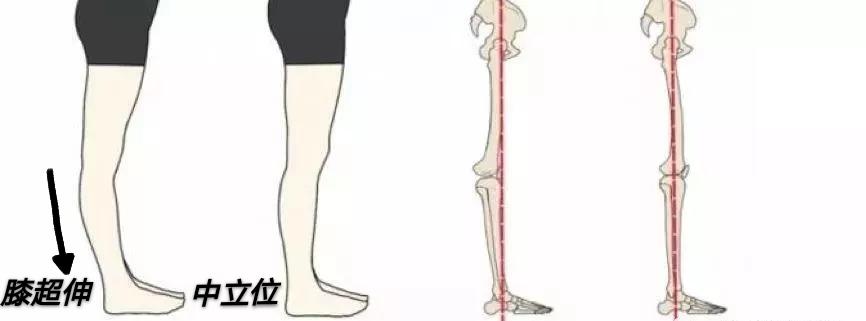 如何判断膝过伸