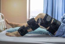 前叉术后膝盖酸胀怎么办?-前叉之家