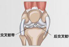 前交叉韧带/后交叉韧带损伤原因-前叉之家