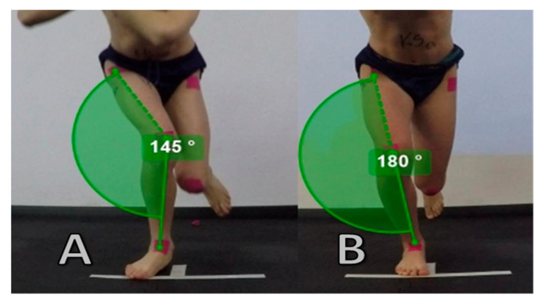 纯ACL重建丨术后恢复期6-12周 - 要避免膝内扣